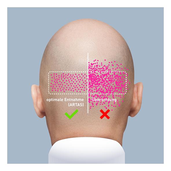 Haartherapie für Haarwachstum - Behandlungsmöglichkeiten
